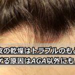 【放置注意】頭皮の乾燥はトラブルのもと!AGAじゃなくてもハゲる?