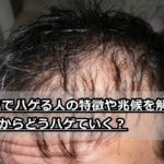 AGAと他のハゲとの違いは?脱毛症の兆候も含めて徹底解説!