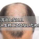 AGAは完治しない?男性型脱毛症診療ガイドラインを駆使しハゲを治そう!