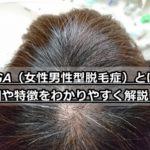 FAGAは治らない?原因や特徴・治療法をわかりやすく解説!【女性限定】