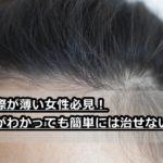 生え際が薄い女性限定!髪型で隠す対策はもう古い?原因を知り改善すべし