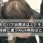 岡村隆史のハゲ治療法はミノキシジル?治った経緯と通うAGA病院はどこ?