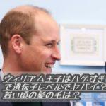 ウィリアム王子はハゲすぎで遺伝子レベルでヤバイ?若い頃の髪の毛は?