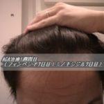 AGA治療1週間目(フィンペシア7日目|ミノタブ7日目)顔のむくみ?