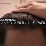 AGA治療2週間目(フィンペシア11日目|ミノタブ11日目)初期脱毛まだ…
