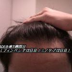 AGA治療2週間目(フィンペシア12日目|ミノタブ12日目)生えてない!?