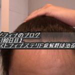ミノフィナのブログ【-180日目】ポストフィナステリド症候群は治る?