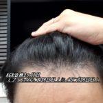 AGA治療2ヶ月目(フィンペシア39日目|ミノタブ39日目)くせ毛が改善