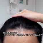 AGA治療2ヶ月目(フィンペシア40日目|ミノタブ40日目)指毛モサモサ説