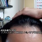 AGA治療2ヶ月目(フィンペシア44日目|ミノタブ44日目)すね毛濃くなる?