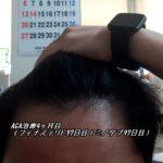 AGA治療4ヶ月目(フィナステリド97日目|ミノタブ97日目)髭の伸び率は?
